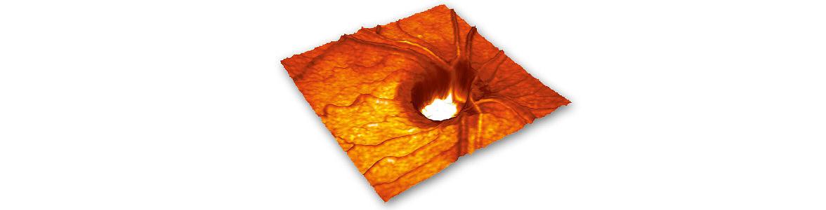 Eine Aushöhlung des Sehnervenkopfes ist der typische Befund beim Glaukom. Die Schädigung des Sehnerven ist irreparabel, weil er sich nicht regenerieren kann. Durch die Operation wird das Sehen nicht besser. Früherkennung ist sehr wichtig. Eine Behandlung muss auch deshalb möglichst früh beginnen, weil Glaukome viele Ursachen haben können. Dabei kann trotz intensiver Behandlung eine Erblindung nicht immer zu verhindern sein. Seit über 100 Jahren ist das chronische Glaukom eine der häufigsten Erblindungsursachen in Deutschland.